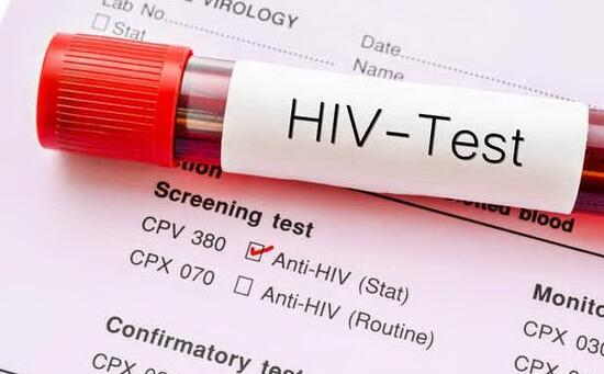 HIV, the first patient in the world recovered with experimental treatment